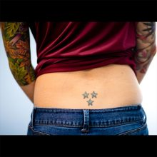 Lower back stars laser tattoo removal