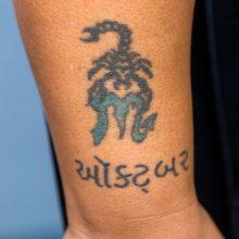 Scorpion tattoo before laser tattoo removal