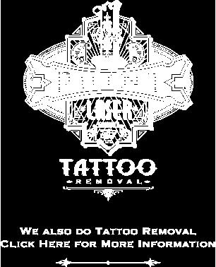 1 Point Tattoo laser tattoo removal