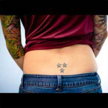 Laser Tattoo removal at 1 Point Tattoo